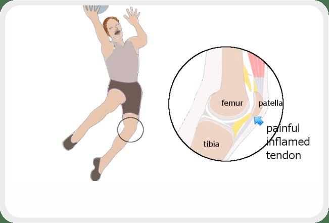 """Резултат с изображение за """"Jumper's Knee"""""""